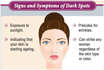 20+ Most Effective Ways to Get Rid of Dark Spots – Ak Clinics