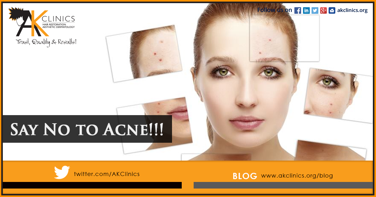 Got Acne Don T Worry Say No To Acne Now