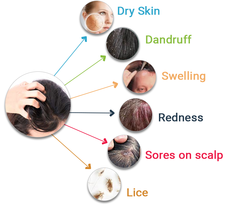 Image result for Itchy Scalp Treatments