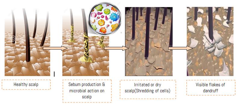Microbes behind dandruff